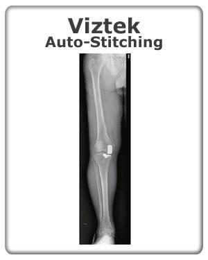 Viztek-Auto-Stitching - CMX